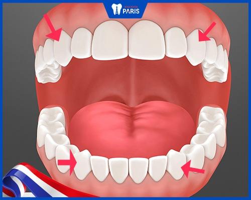 Răng số 3 là răng gì? Thay khi nào?