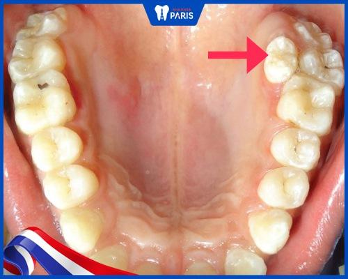 Răng số 9 là răng nào?