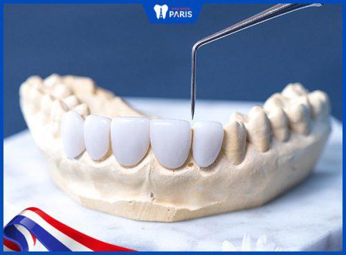 Răng sứ Đức có tốt không?