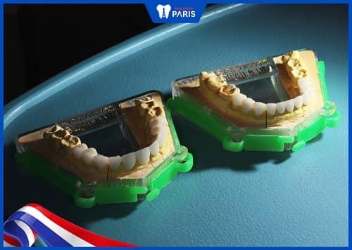 răng sứ đức có tốt không