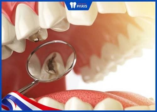 miếng hàn răng bị rớt do vật liệu kém chất lượng