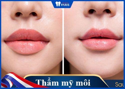 phẫu thuật làm mỏng môi