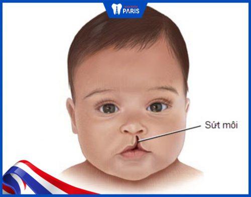 Hình ảnh trẻ bị sứt môi 4mm