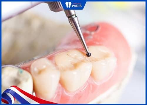 cách tháo miếng trám răng