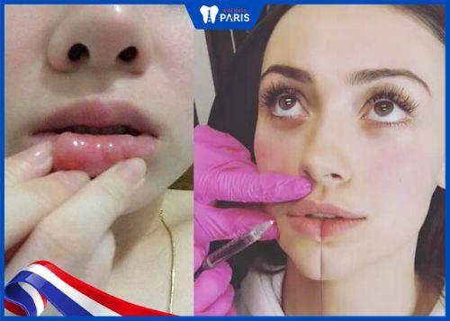 nguyên nhân khiến tiêm filler môi bị vón cục