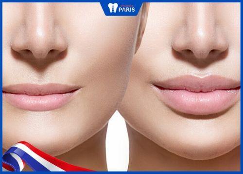 tiêm filler môi giữ được bao lâu