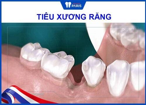 tiêu xương răng khiến răng sứ bị hở