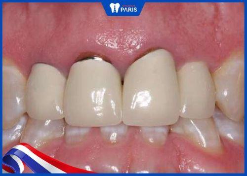 răng sứ hở có thể gây viêm lợi