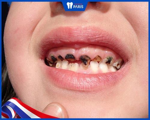 Xiết ăn răng là gì