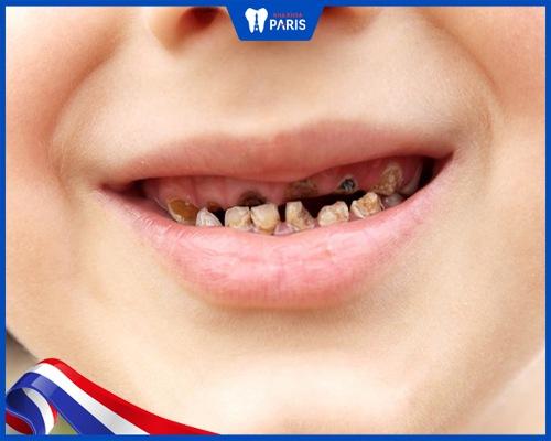 Triệu chứng bịxiết ăn răng