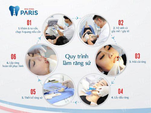 Quy trình làm răng vàng tại nha khoa Paris