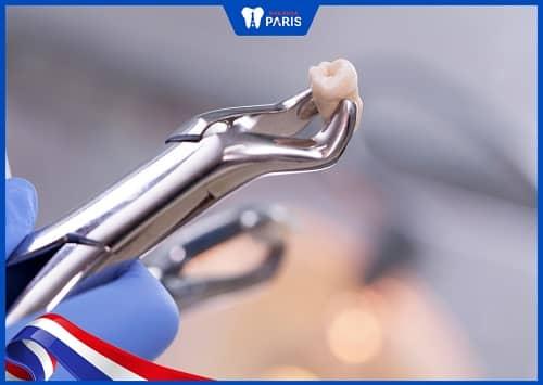 bác sĩ không khâu sau khi nhổ răng
