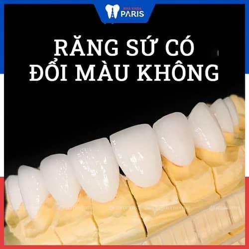 bọc răng sứ có bị đổi màu không