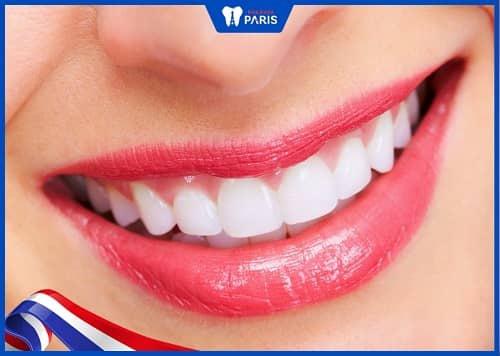 bọc răng sứ không lấy tủy