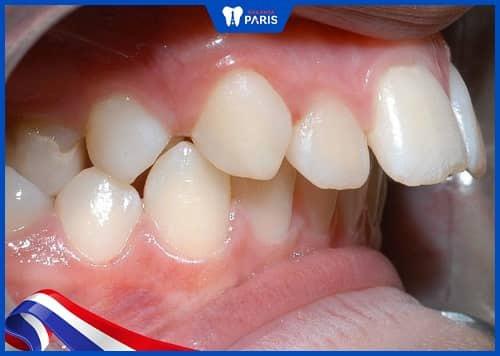 bọc răng sứ lấy tủy