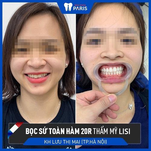 bọc răng sứ lisi 2