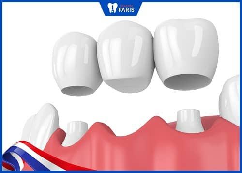 bọc răng sứ có nên lấy tuỷ