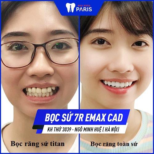 răng sứ titan có bị đen viền không