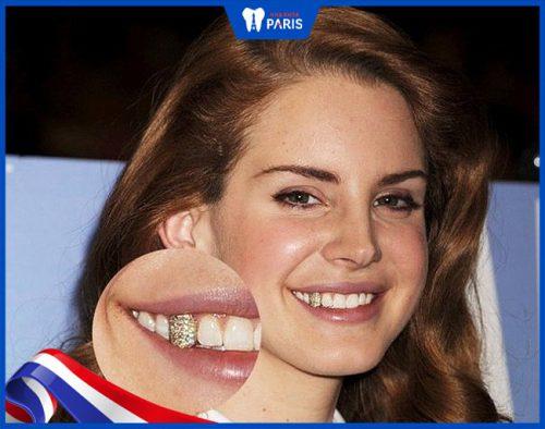 Làm răng vàng có nên hay không?