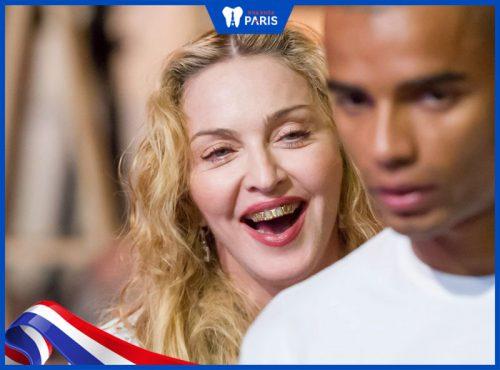 Madonna bọc răng bằng vàng