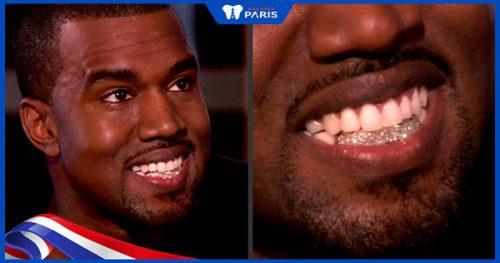 mốt làm răng vàng