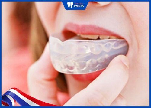 cách làm cho răng đều