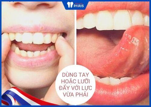 cách làm răng đều tại nhà