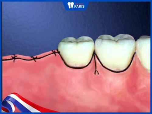 Nhổ răng bao lâu cắt chỉ?