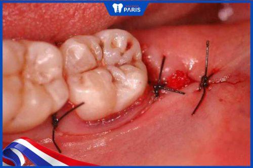 Cắt chỉ nhổ răng khôn có bắt buộc?