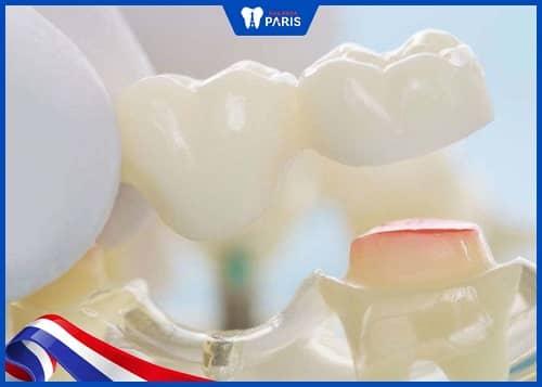 cầu răng sứ bị đau do nguyên nhân gì