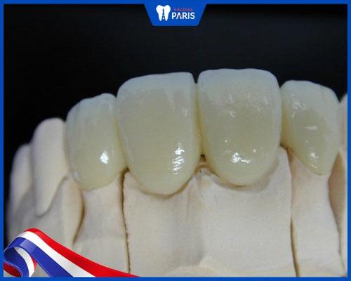 răng sứ zirconia bảo hành bao lâu