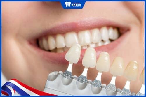 hướng dẫn chon màu răng sứ