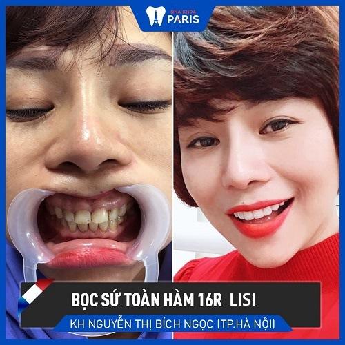 chữa răng ngắn tại nha khoa