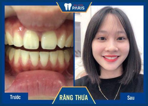 giá răng sứ cercon ht
