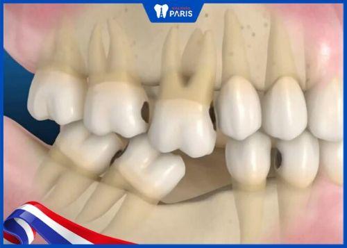 hậu quả khi mất răng số 5