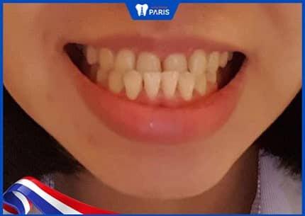 hình ảnh răng quặp