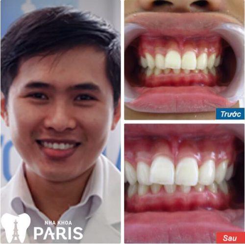 Răng trắng sáng chỉ với 1 lần hẹn