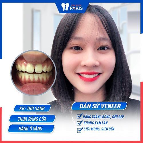 Khách hàng nhận khuyến mãi bọc răng sứ nha khoa Paris