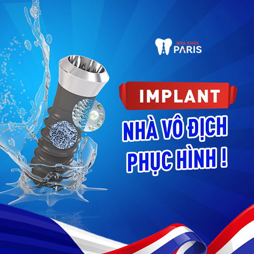 khuyến mại trồng răng implant tại nha khoa Paris