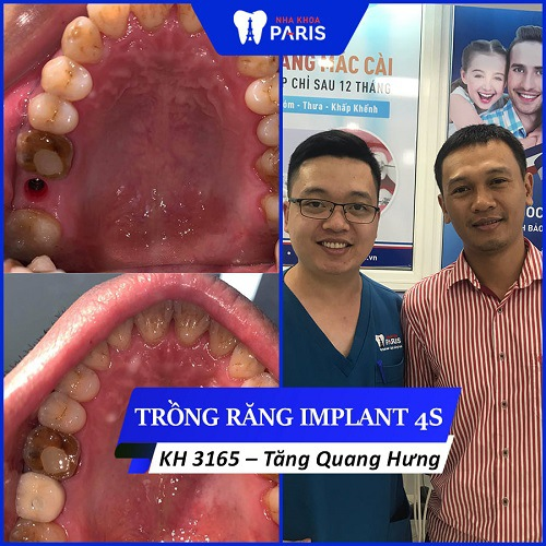 trồng răng implant khuyến mãi khủng