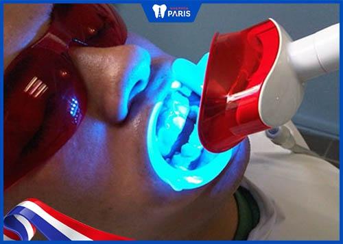 máy làm trắng răng bằng đèn plasma