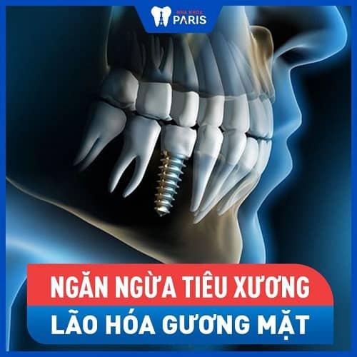 lợi ích khi trồng răng số 7 với implant