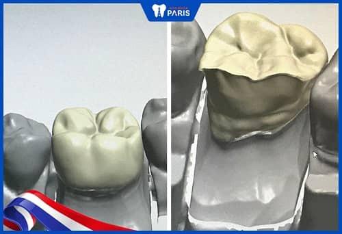 phân biệt răng sứ zirconia