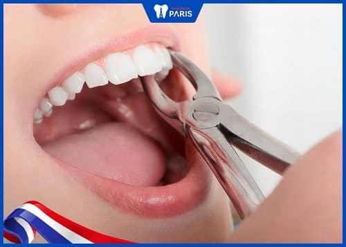 nhổ răng bình thường có phải khâu không