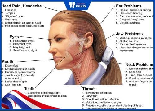 nhổ răng khôn đau họng do sưng cơ