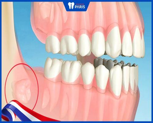Nhổ răng khôn có phải nằm viện không?