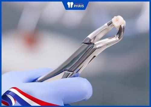 nhổ răng số 5 có ảnh hưởng gì không