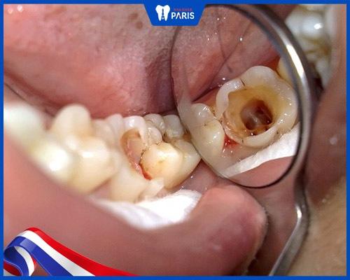 Răng hàm bị mẻ