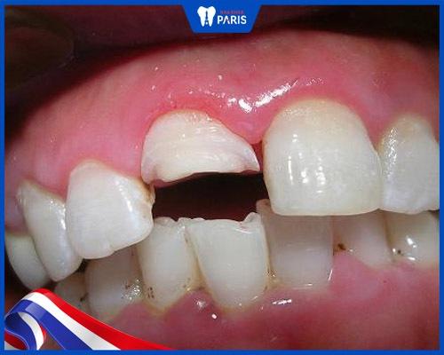 Răng bị mẻ lớn