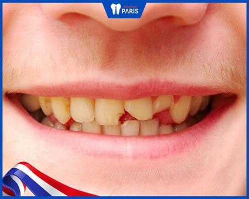 Răng bị mẻ nhỏ